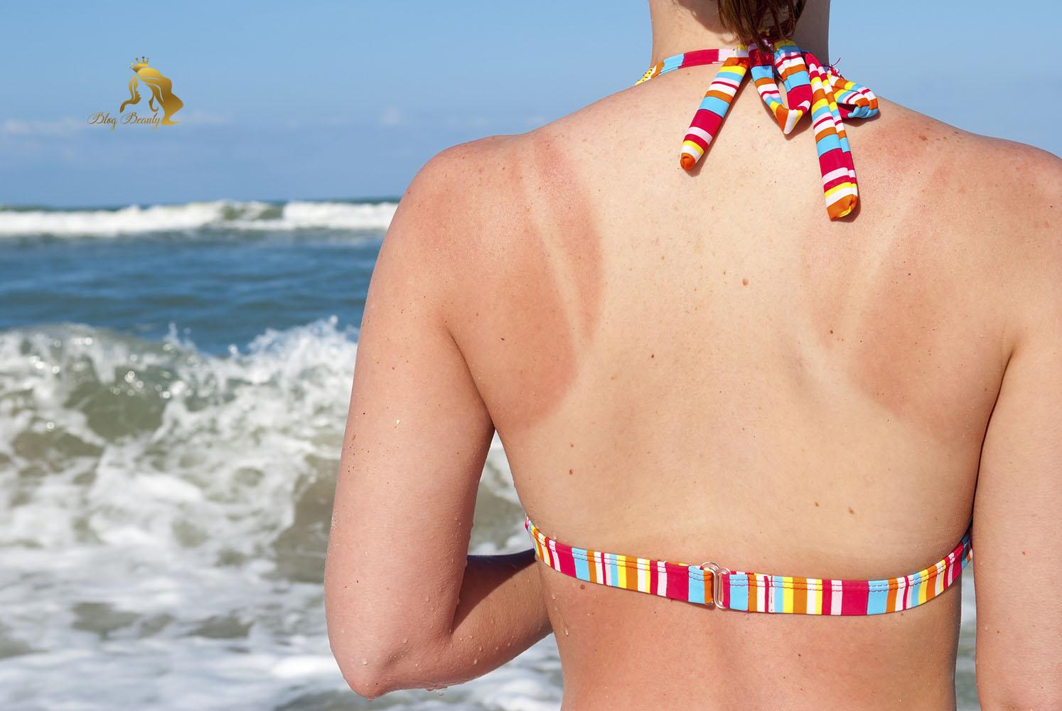 Cách chăm sóc da bị cháy nắng