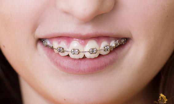 Niềng răng V line
