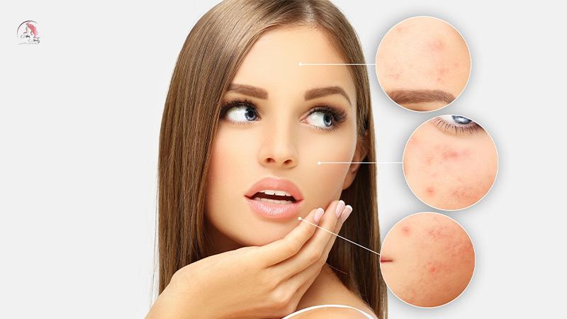 Serum trị thâm mụn và quy trình chăm sóc da